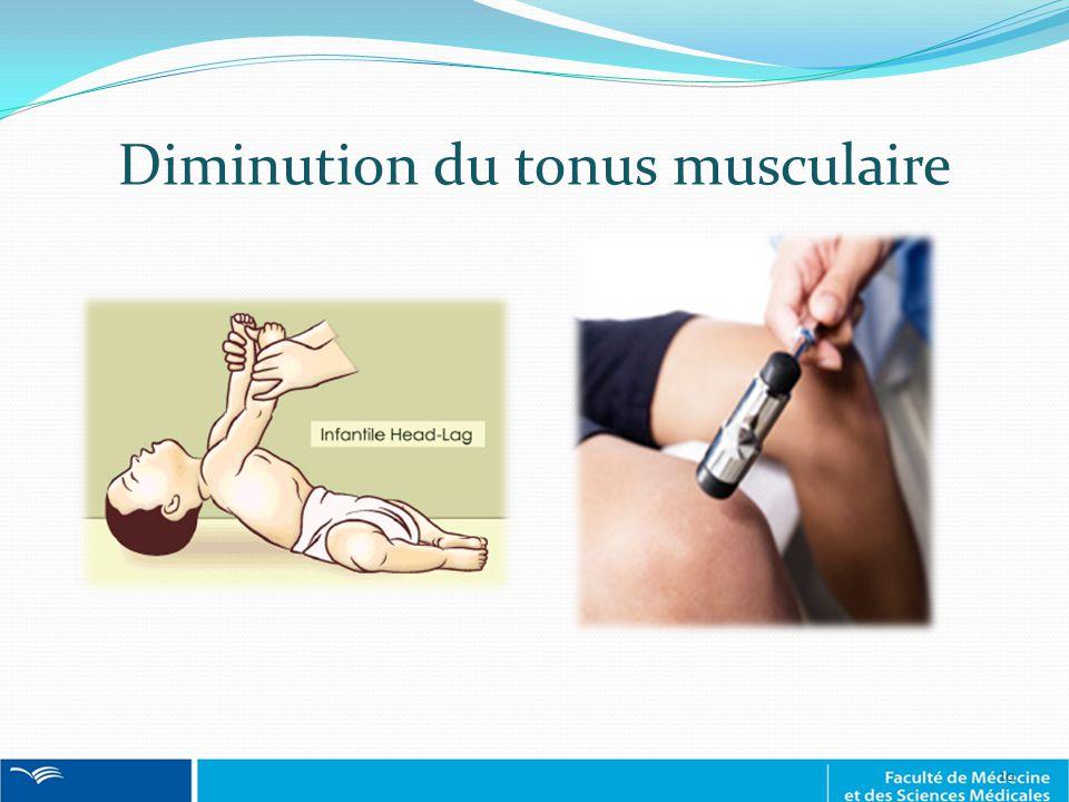 Diminution du tonus musculaire 10