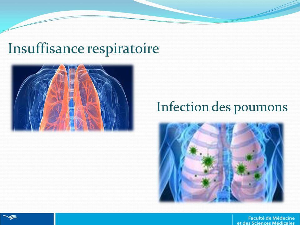Insuffisance respiratoire Infection des poumons