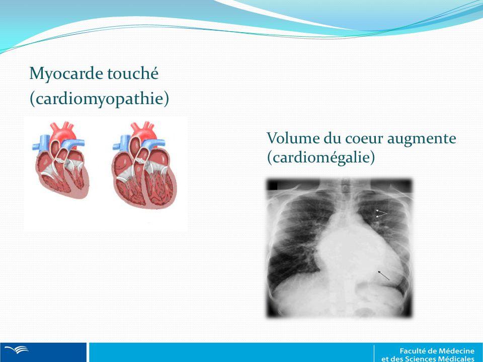 Myocarde touché (cardiomyopathie) Volume du coeur augmente (cardiomégalie)