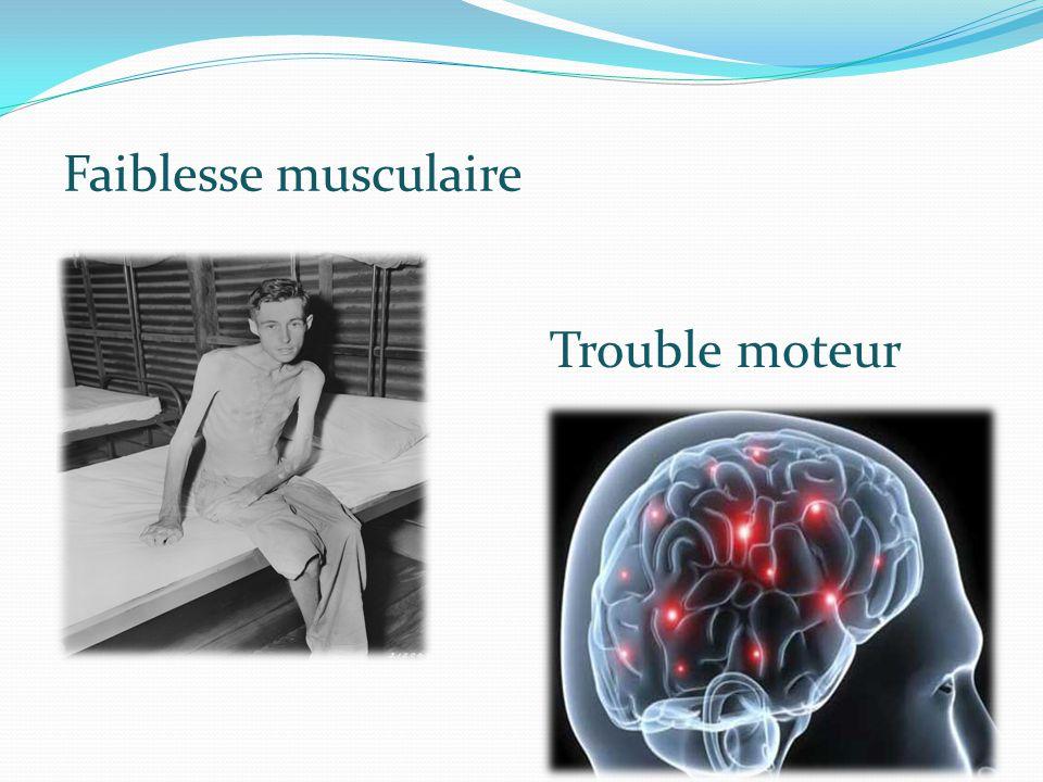 Faiblesse musculaire Trouble moteur