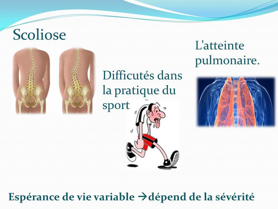 Scoliose Difficutés dans la pratique du sport L'atteinte pulmonaire. Espérance de vie variable  dépend de la sévérité