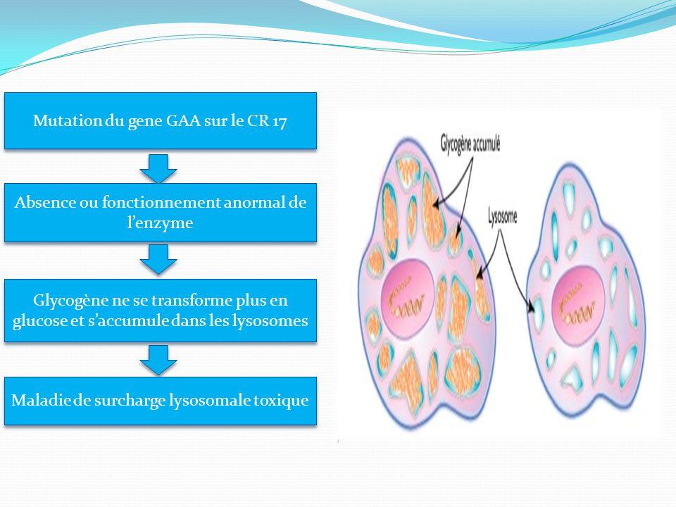 Mutation du gene GAA sur le CR 17 Absence ou fonctionnement anormal de l'enzyme Glycogène ne se transforme plus en glucose et s'accumule dans les lysosomes Maladie de surcharge lysosomale toxique