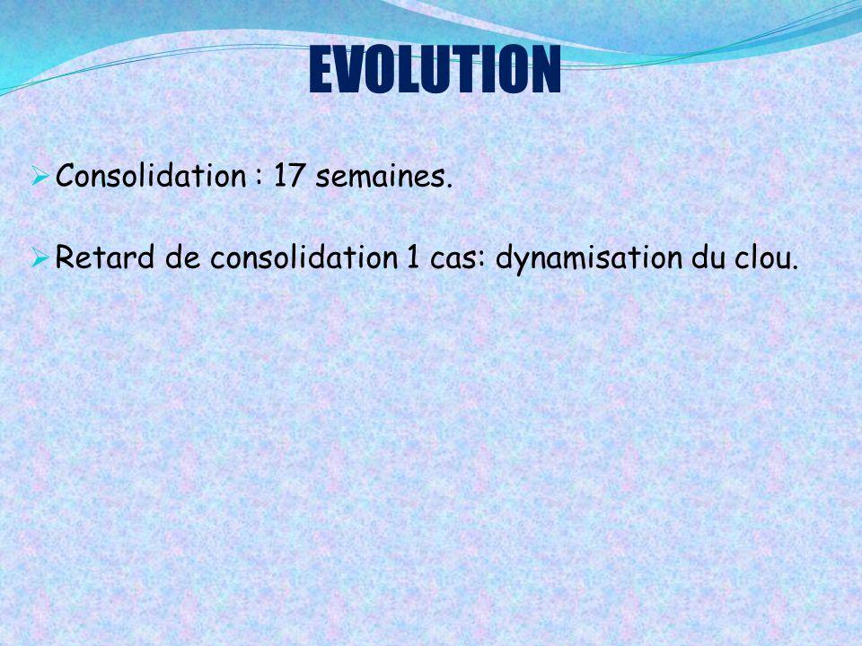 EVOLUTION  Consolidation : 17 semaines.  Retard de consolidation 1 cas: dynamisation du clou.