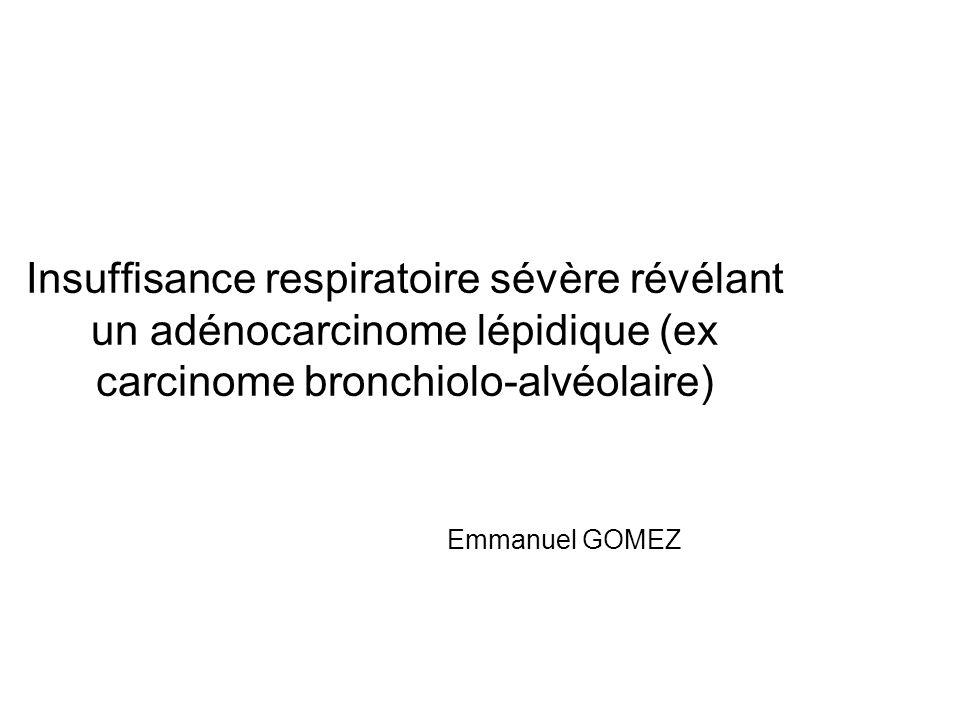 Patient 4 Evolution: *Apyrexie, *Expectoration séreuse (> 150 ml/j), *Hypoxémie sévère *LBA: cellules ADK Biopsie transpariétale ADK lépidique non mucineux Evolution sous Erlotinib (Tarceva) À 5 moisRechute à 4 ans Grossissement x20 (EGFR: non)