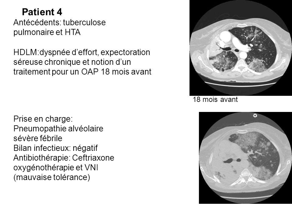Patient 4 Antécédents: tuberculose pulmonaire et HTA HDLM:dyspnée d'effort, expectoration séreuse chronique et notion d'un traitement pour un OAP 18 m