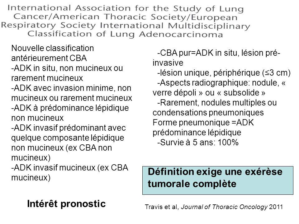 Nouvelle classification antérieurement CBA -ADK in situ, non mucineux ou rarement mucineux -ADK avec invasion minime, non mucineux ou rarement mucineu