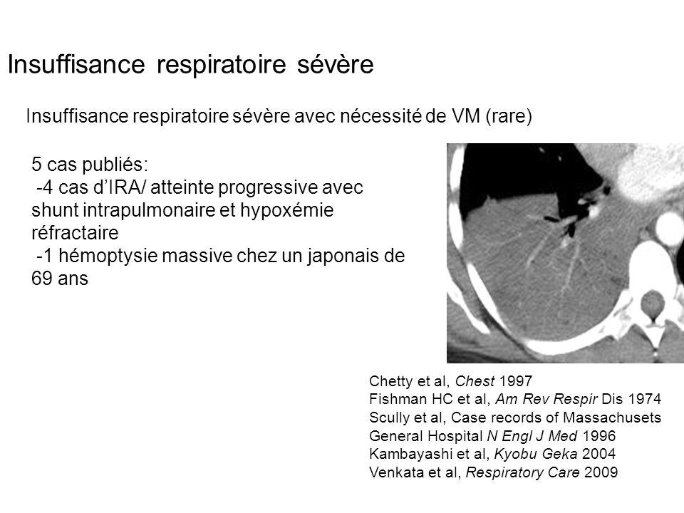 Insuffisance respiratoire sévère Insuffisance respiratoire sévère avec nécessité de VM (rare) 5 cas publiés: -4 cas d'IRA/ atteinte progressive avec s