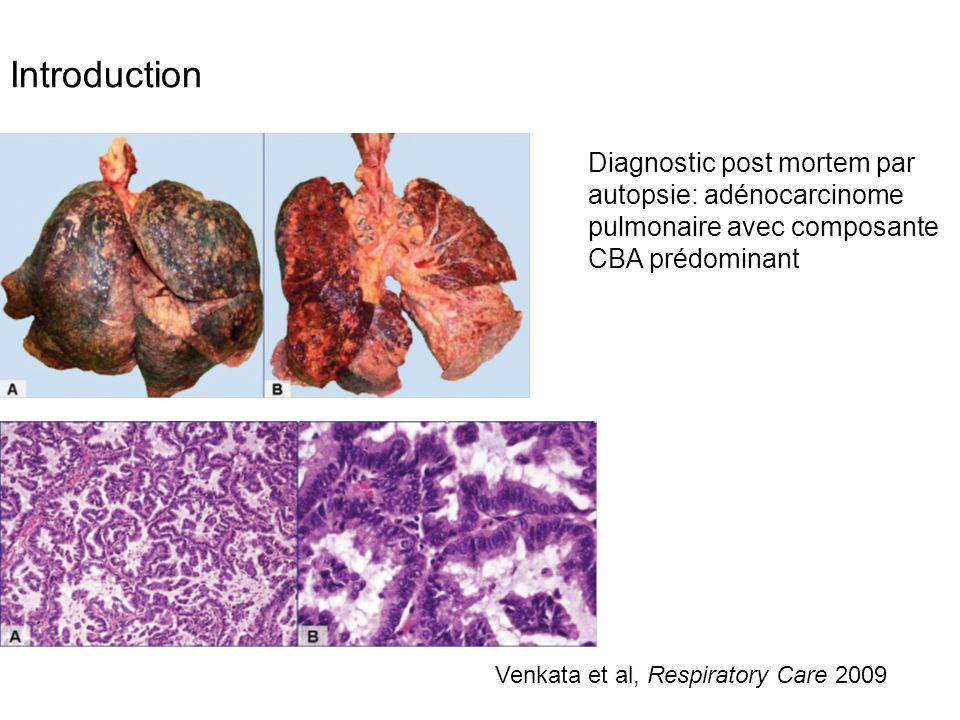 Nouvelle classification antérieurement CBA -ADK in situ, non mucineux ou rarement mucineux -ADK avec invasion minime, non mucineux ou rarement mucineux -ADK à prédominance lépidique non mucineux -ADK invasif prédominant avec quelque composante lépidique non mucineux (ex CBA non mucineux) -ADK invasif mucineux (ex CBA mucineux) Travis et al, Journal of Thoracic Oncology 2011 Intérêt pronostic -CBA pur=ADK in situ, lésion pré- invasive -lésion unique, périphérique (≤3 cm) -Aspects radiographique: nodule, « verre dépoli » ou « subsolide » -Rarement, nodules multiples ou condensations pneumoniques Forme pneumonique =ADK prédominance lépidique -Survie à 5 ans: 100% Définition exige une exérèse tumorale complète