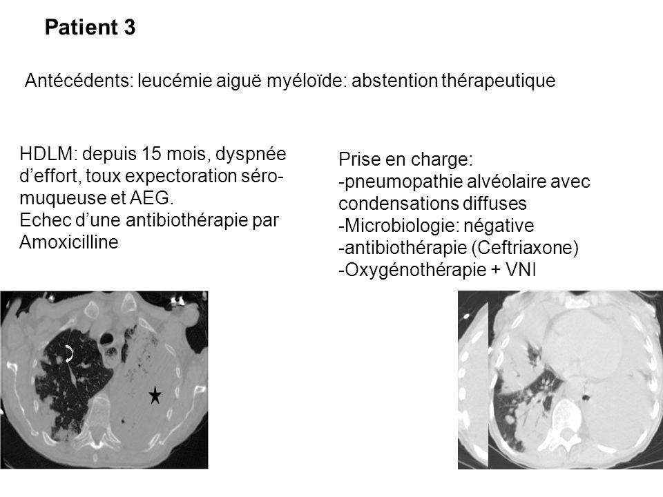 Patient 3 Antécédents: leucémie aiguë myéloïde: abstention thérapeutique HDLM: depuis 15 mois, dyspnée d'effort, toux expectoration séro- muqueuse et