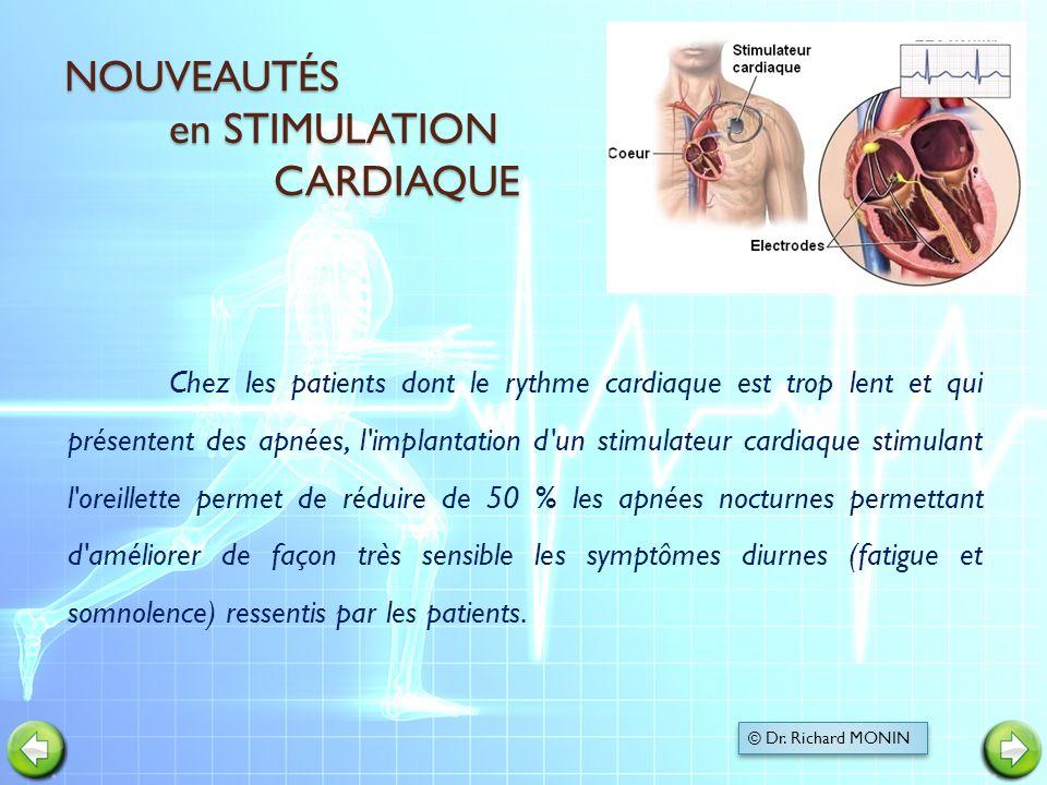 NOUVEAUTÉS en STIMULATION CARDIAQUE NOUVEAUTÉS en STIMULATION CARDIAQUE Chez les patients dont le rythme cardiaque est trop lent et qui présentent des