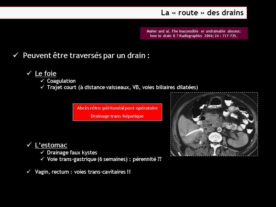 Peuvent être traversés par un drain : Le foie Coagulation Trajet court (à distance vaisseaux, VB, voies biliaires dilatées) L'estomac Drainage faux ky