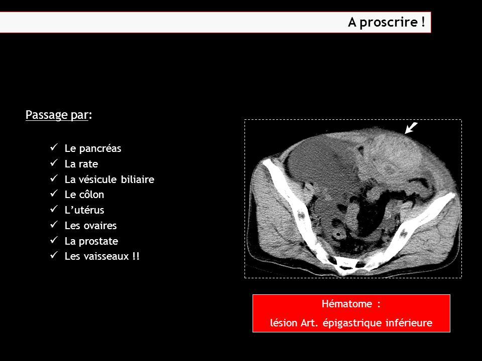 Passage par: Le pancréas La rate La vésicule biliaire Le côlon L'utérus Les ovaires La prostate Les vaisseaux !! Hématome : lésion Art. épigastrique i