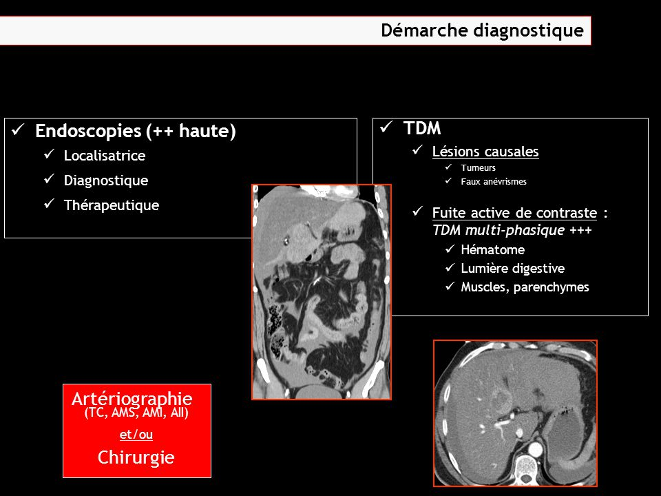 Endoscopies (++ haute) Localisatrice Diagnostique Thérapeutique TDM Lésions causales Tumeurs Faux anévrismes Fuite active de contraste : TDM multi-pha