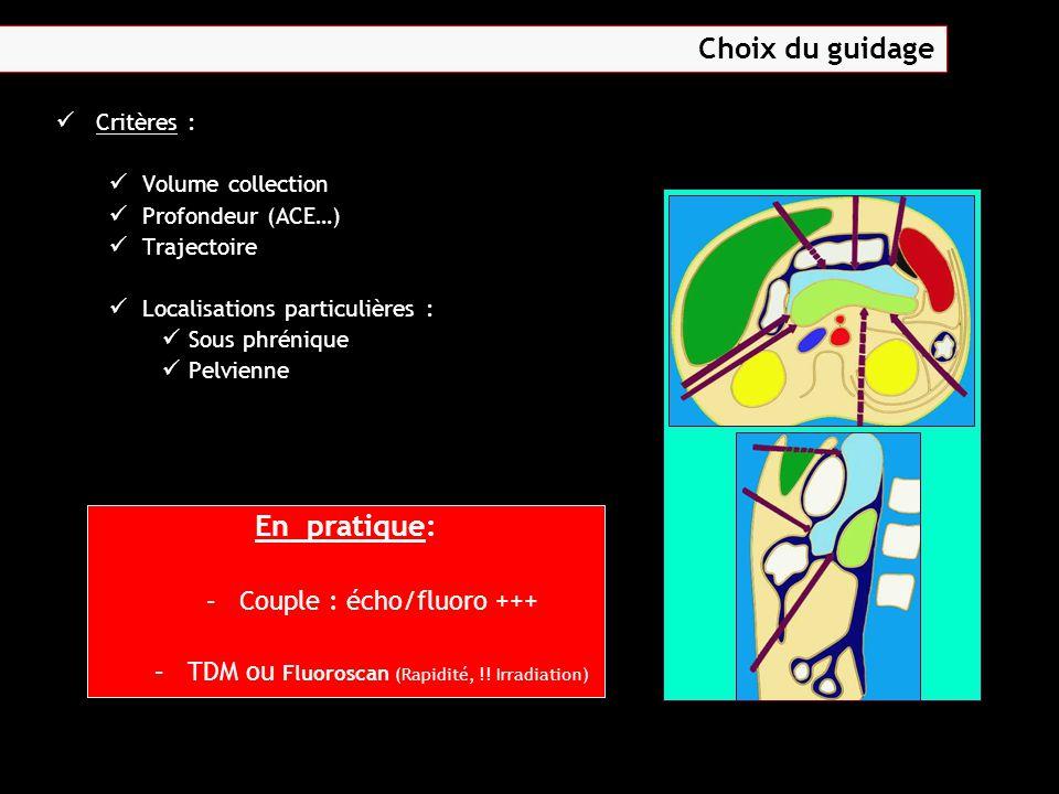 Critères : Volume collection Profondeur (ACE…) Trajectoire Localisations particulières : Sous phrénique Pelvienne En pratique: – –Couple : écho/fluoro