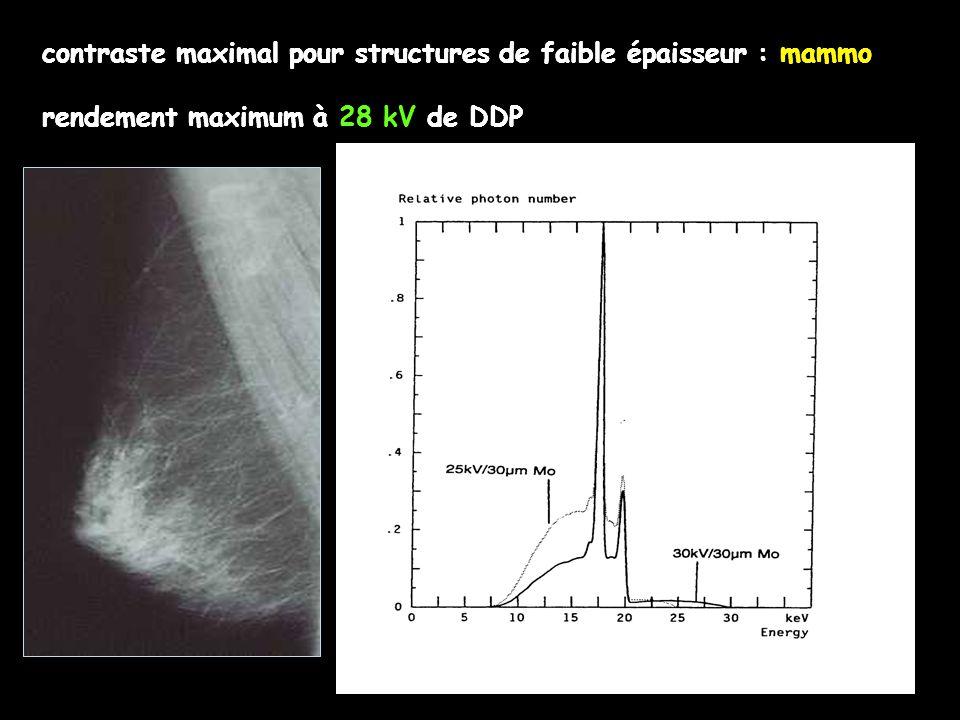 contraste maximal pour structures de faible épaisseur : mammo rendement maximum à 28 kV de DDP contraste maximal pour structures de faible épaisseur :