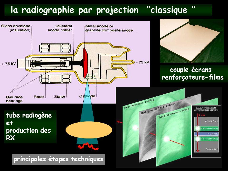 la radiographie par projection ''classique '' principales étapes techniques tube radiogène et production des RX couple écrans renforçateurs-films