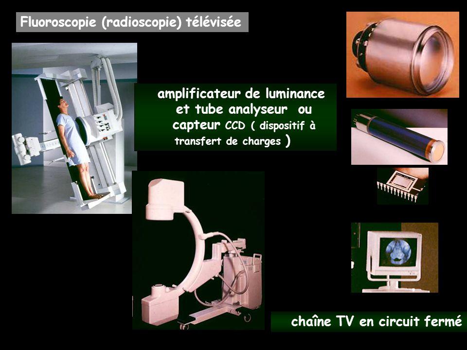 Fluoroscopie (radioscopie) télévisée chaîne TV en circuit fermé amplificateur de luminance et tube analyseur ou capteur CCD ( dispositif à transfert d