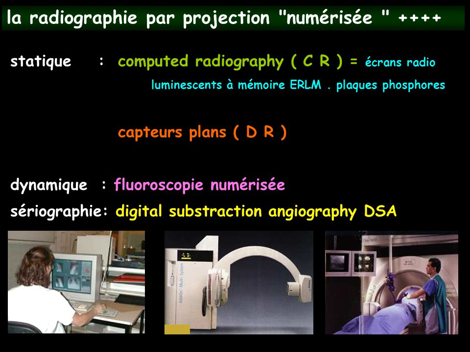 la radiographie par projection