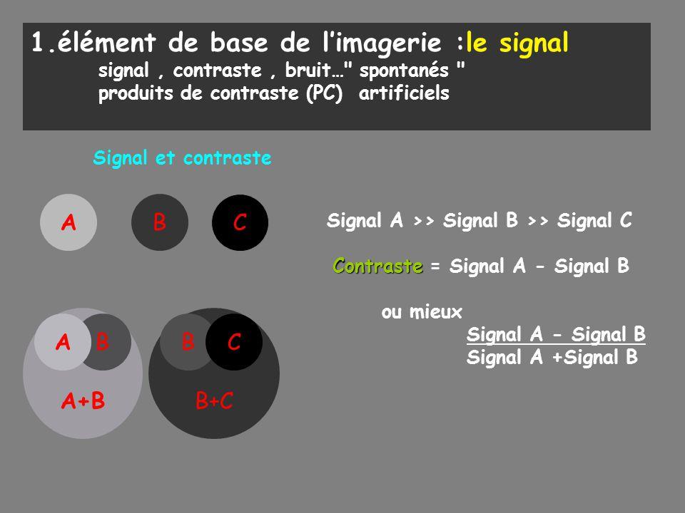 1.élément de base de l'imagerie :le signal signal, contraste, bruit…