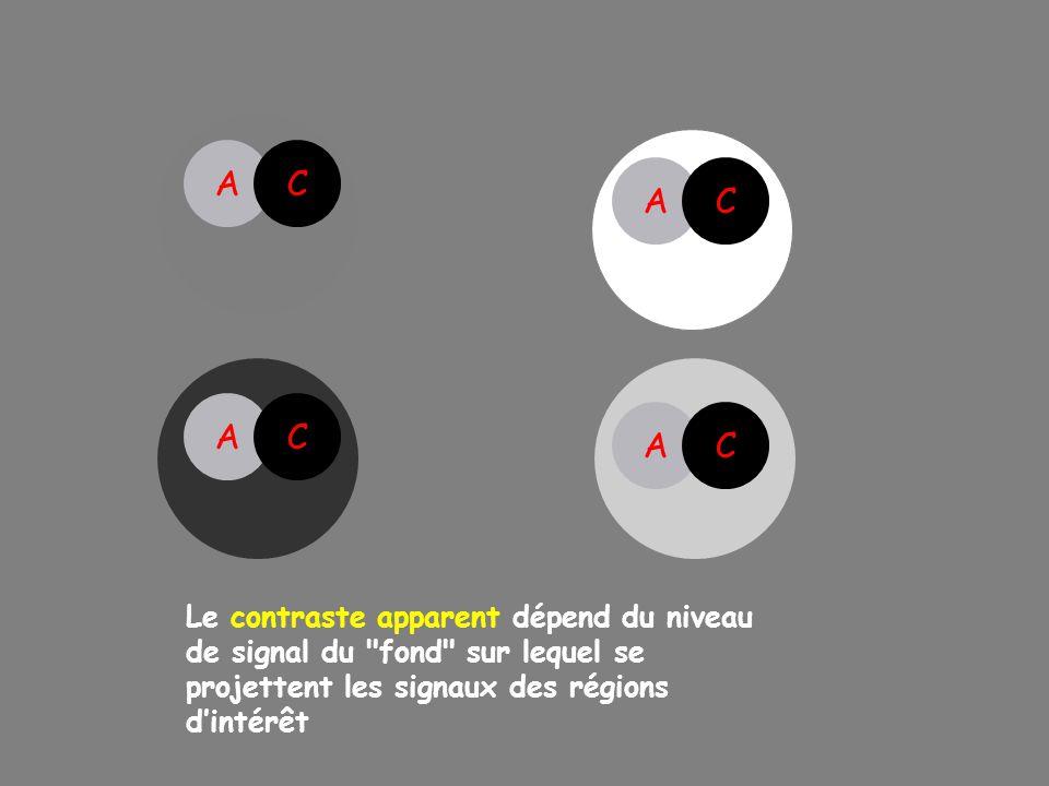 AC AC Le contraste apparent dépend du niveau de signal du