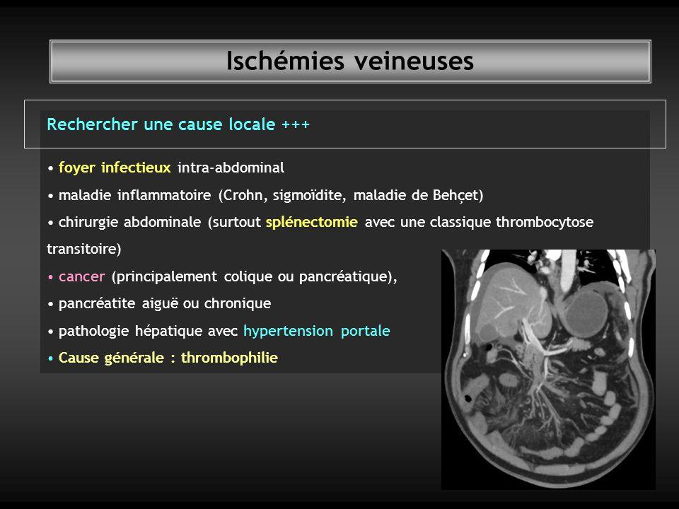 Ischémies veineuses Rechercher une cause locale +++ foyer infectieux intra-abdominal maladie inflammatoire (Crohn, sigmoïdite, maladie de Behçet) chirurgie abdominale (surtout splénectomie avec une classique thrombocytose transitoire) cancer (principalement colique ou pancréatique), pancréatite aiguë ou chronique pathologie hépatique avec hypertension portale Cause générale : thrombophilie