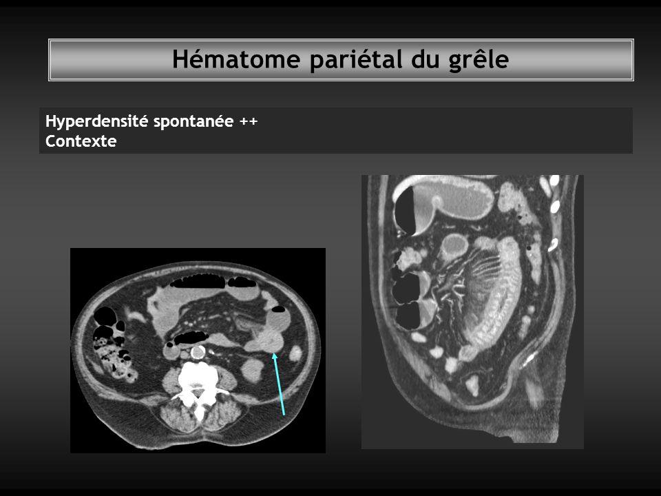 Hématome pariétal du grêle Hyperdensité spontanée ++ Contexte