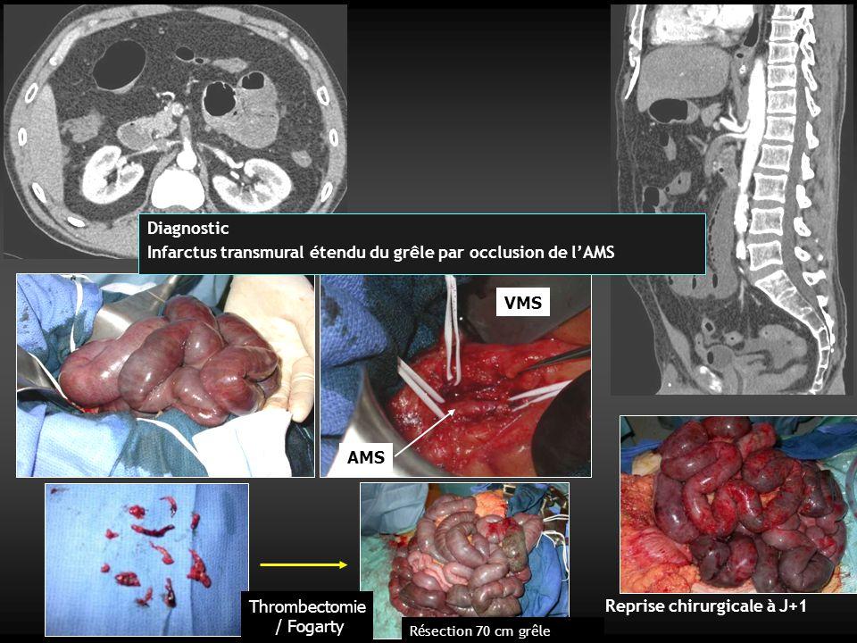 AMS VMS Thrombectomie / Fogarty Reprise chirurgicale à J+1 Diagnostic Infarctus transmural étendu du grêle par occlusion de l'AMS R é section 70 cm grêle
