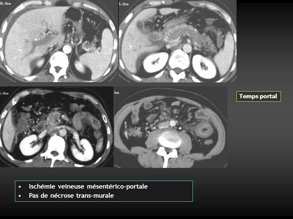 Cas 1 ter : Homme 50 ans Douleurs abdominales peu intenses évoluant depuis 8 jours Abdomen souple Transit normal Ischémie mésentérique veineuse + cavernome portal