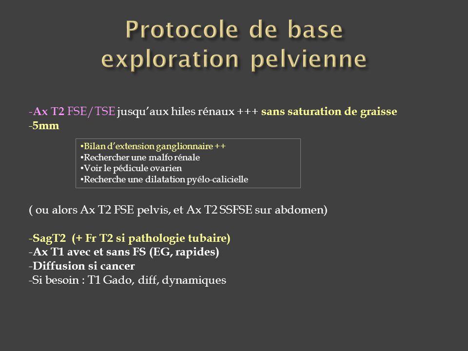 - Ax T2 FSE/TSE jusqu'aux hiles rénaux +++ sans saturation de graisse - 5mm ( ou alors Ax T2 FSE pelvis, et Ax T2 SSFSE sur abdomen) - SagT2 (+ Fr T2