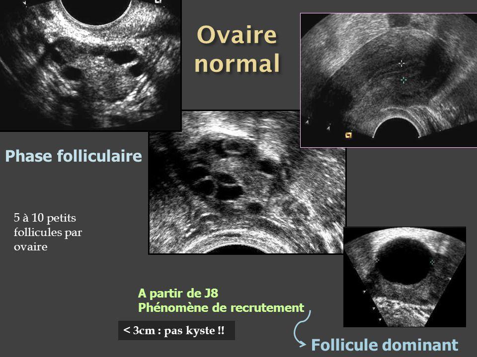 Phase folliculaire A partir de J8 Phénomène de recrutement Follicule dominant < 3cm : pas kyste !! 5 à 10 petits follicules par ovaire