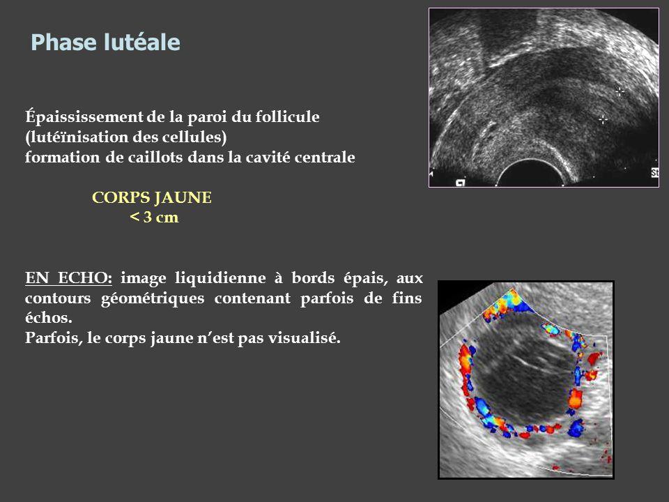 Épaississement de la paroi du follicule (lutéïnisation des cellules) formation de caillots dans la cavité centrale CORPS JAUNE < 3 cm EN ECHO: image l