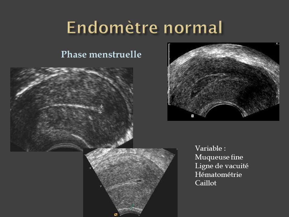 Phase menstruelle Variable : Muqueuse fine Ligne de vacuité Hématométrie Caillot