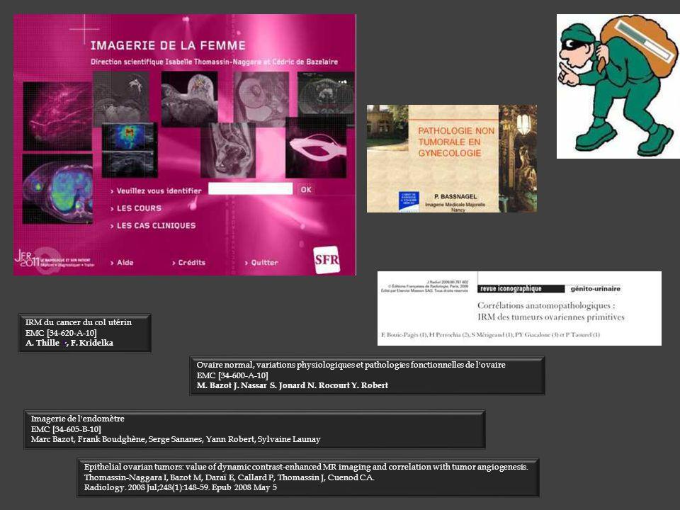 Imagerie de l'endomètre EMC [34-605-B-10] Marc Bazot, Frank Boudghène, Serge Sananes, Yann Robert, Sylvaine Launay IRM du cancer du col utérin EMC [34