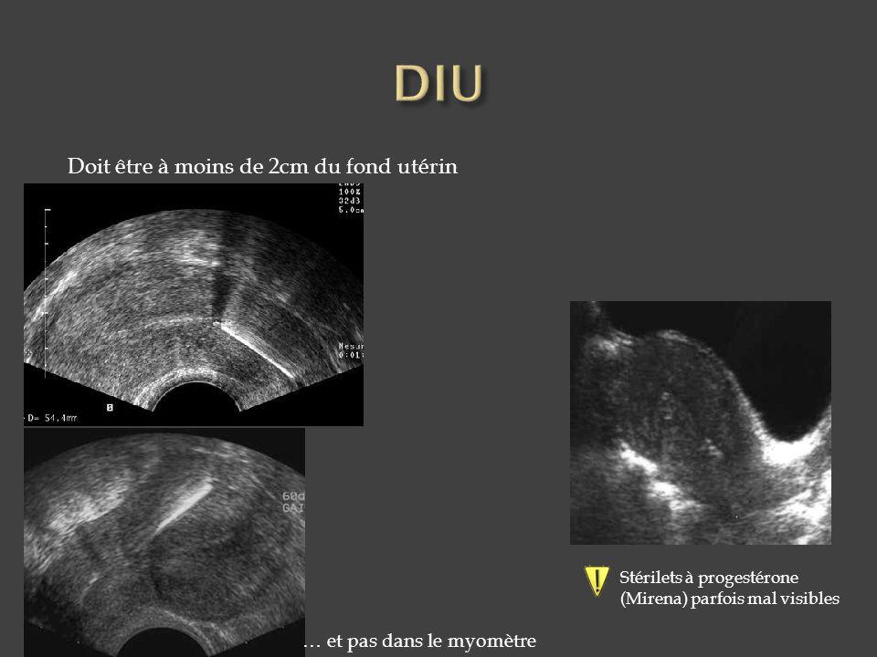 Doit être à moins de 2cm du fond utérin Stérilets à progestérone (Mirena) parfois mal visibles … et pas dans le myomètre