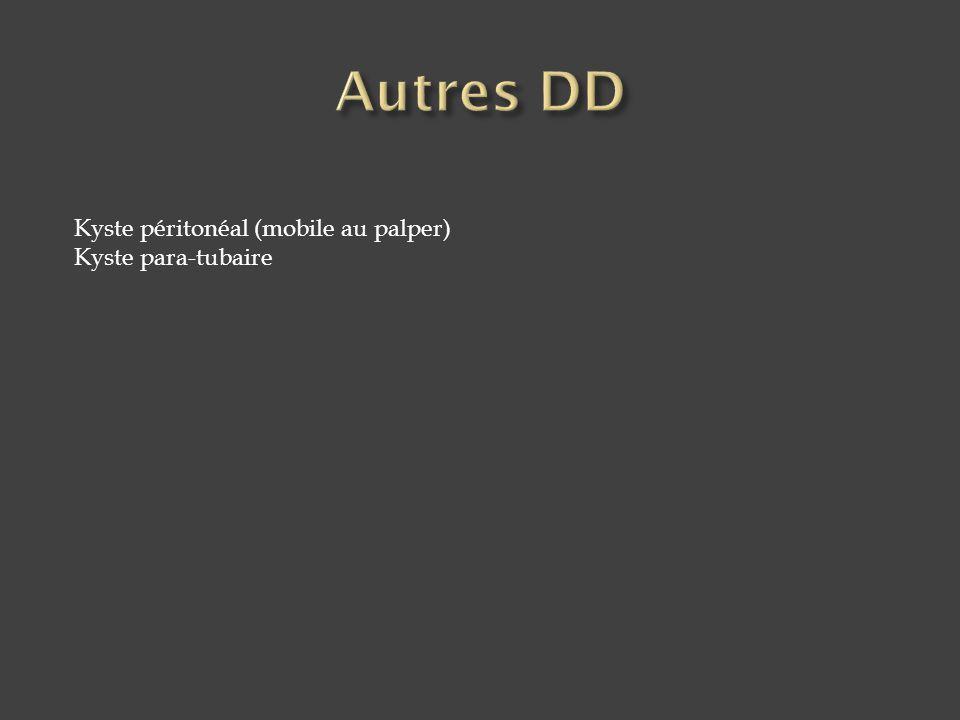 Kyste péritonéal (mobile au palper) Kyste para-tubaire
