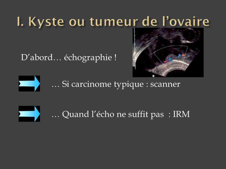 D'abord… échographie ! … Quand l'écho ne suffit pas : IRM … Si carcinome typique : scanner