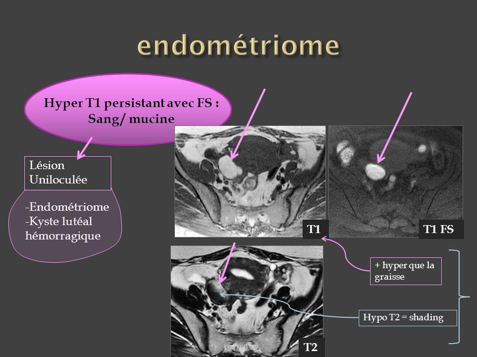 Hyper T1 persistant avec FS : Sang / mucine Lésion Uniloculée -Endométriome -Kyste lutéal hémorragique T1T1 FS + hyper que la graisse Hypo T2 = shadin