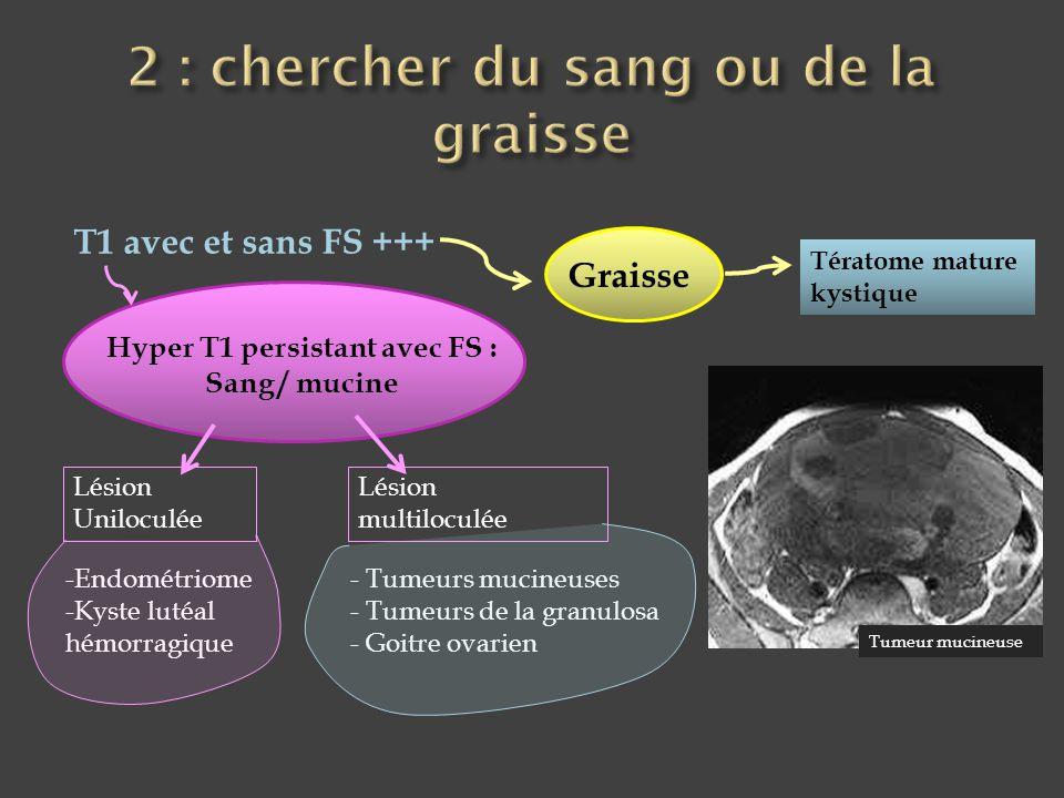 T1 avec et sans FS +++ Graisse Tératome mature kystique Hyper T1 persistant avec FS : Sang / mucine Lésion Uniloculée Lésion multiloculée -Endométriom