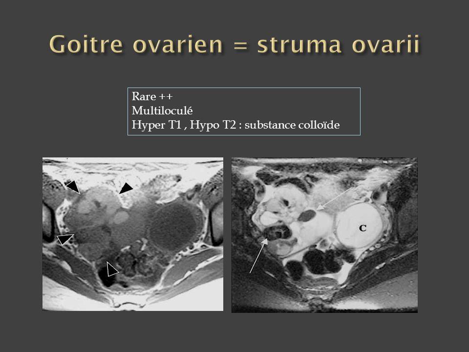 Rare ++ Multiloculé Hyper T1, Hypo T2 : substance colloïde