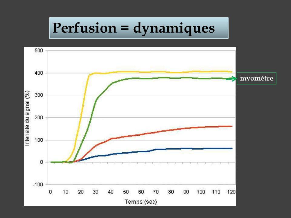 Perfusion = dynamiques myomètre