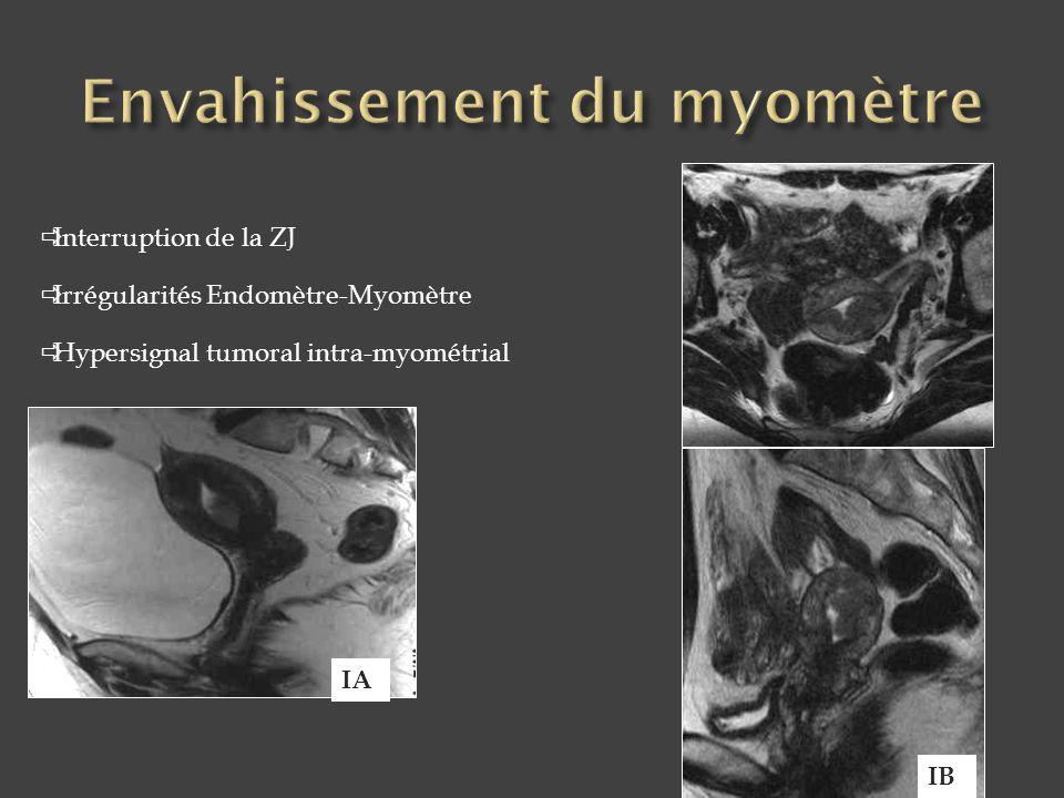  Interruption de la ZJ  Irrégularités Endomètre-Myomètre  Hypersignal tumoral intra-myométrial IA IB