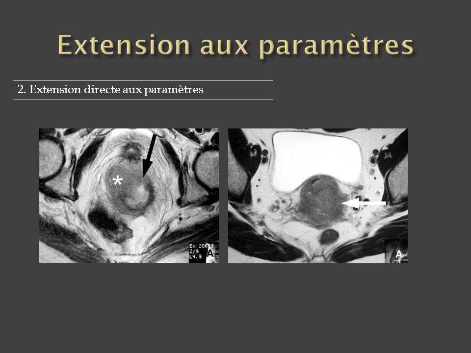 2. Extension directe aux paramètres