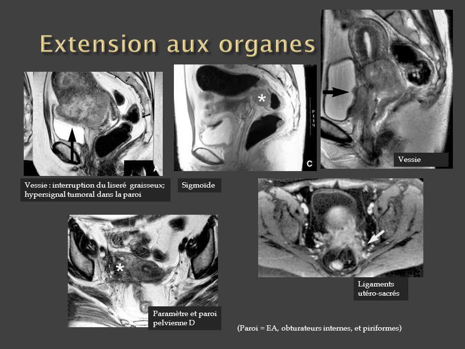 Vessie : interruption du liseré graisseux; hypersignal tumoral dans la paroi Sigmoïde Paramètre et paroi pelvienne D (Paroi = EA, obturateurs internes