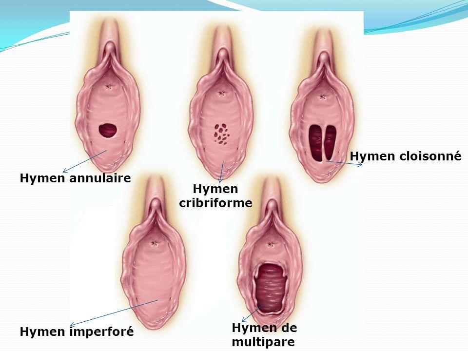 Hymen cribriforme Hymen de multipare Hymen cloisonné Hymen annulaire Hymen imperforé