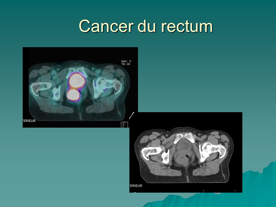 Cancer du rectum