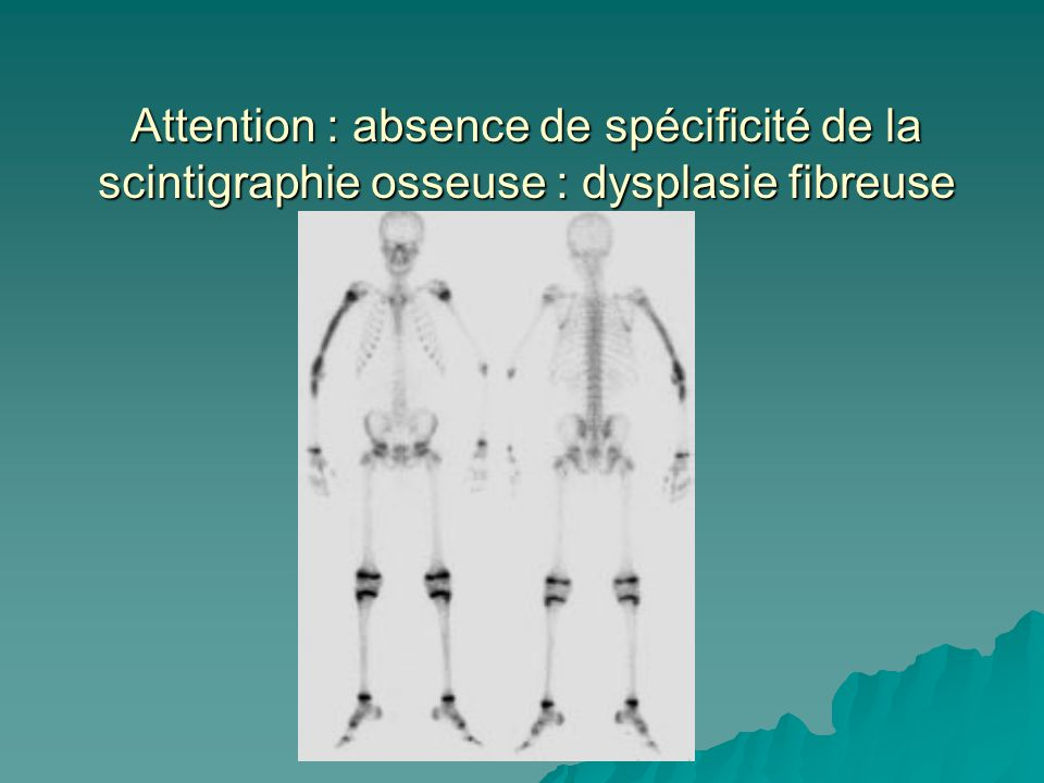 Attention : absence de spécificité de la scintigraphie osseuse : dysplasie fibreuse