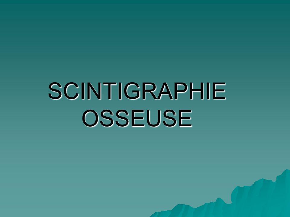 Attention : absence de spécificité de la scintigraphie osseuse : dysplasie fibreuse