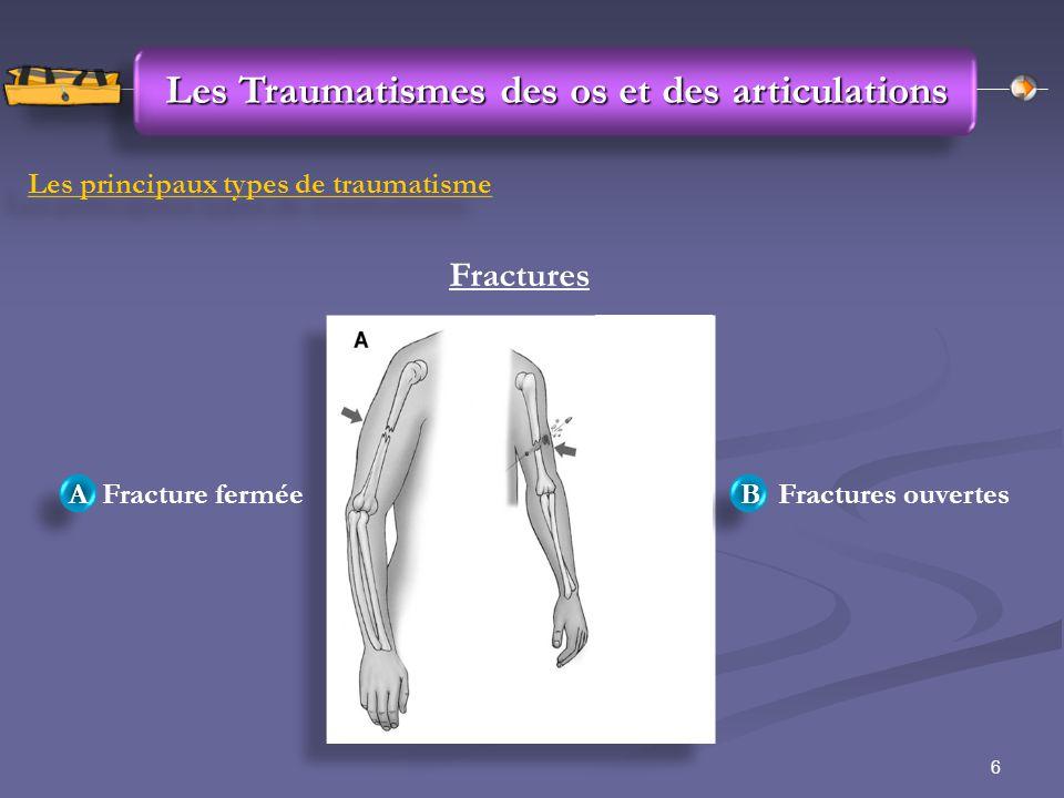 6 Les Traumatismes des os et des articulations Les principaux types de traumatisme Fractures Fracture fermée Fractures ouvertes A A B B
