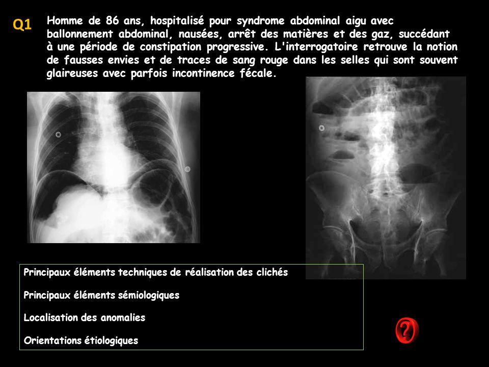 décrire avec précision la technique utilisée -CT hépatique avec injection de produit de contraste (PCI = produite de contraste iodés hydrosolubles, de faible osmolalité, LOCM) coupes passant par le plan du pancréas -temps artériel ''différé '' ( 45 s après IV ) ; aorte et TC bien injectés, branches portales et VCI peu rehaussées ; néphrogramme cortico- médullaire.