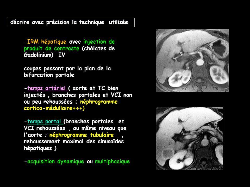 décrire avec précision la technique utilisée -IRM hépatique avec injection de produit de contraste (chélates de Gadolinium) IV coupes passant par la p